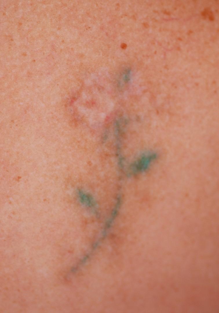 Effacer un tatouage - après
