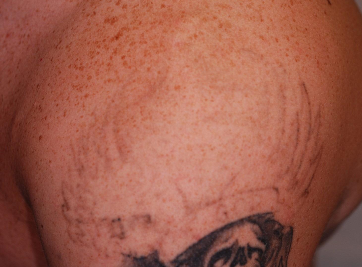 Enlever tatouage - apres