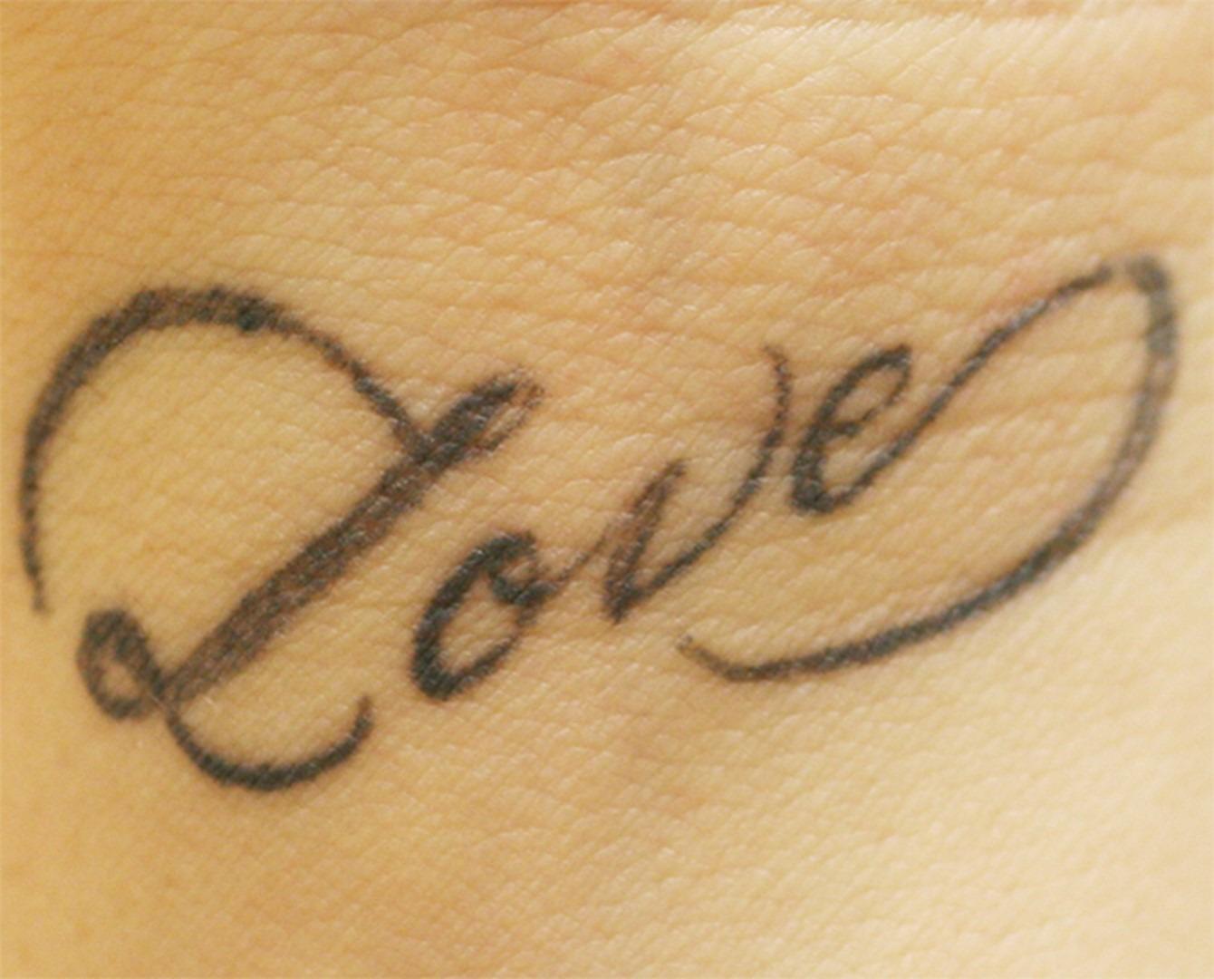 retirer un tatouage- avant