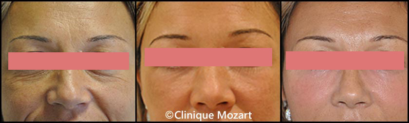 laser fractionné yeux femme